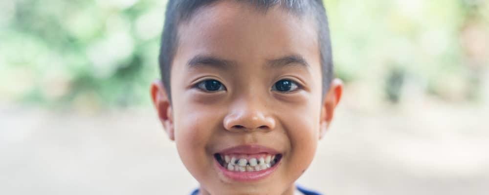 Akankah Gigi Anak yang Hitam dan Keropos Terbawa Sampai Dewasa?