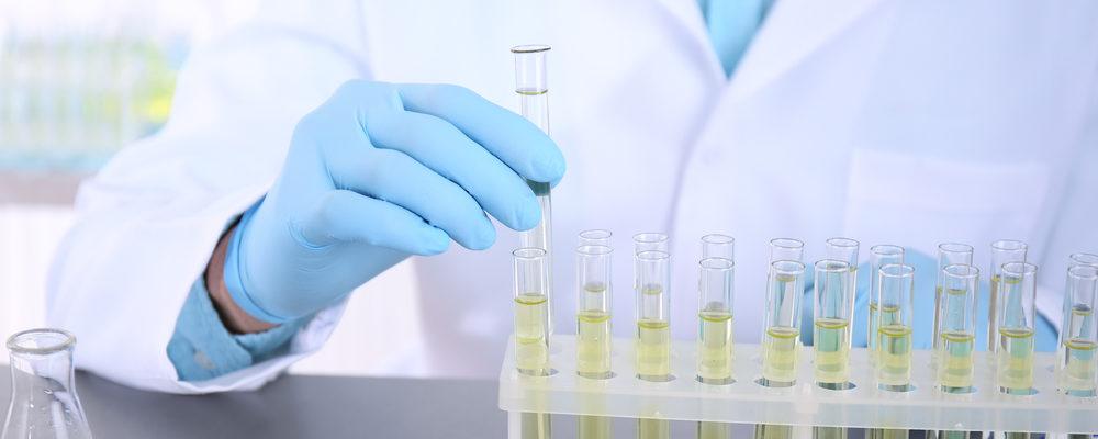 Deteksi Seberapa Cepat Anda Menua Dengan Tes Urine!