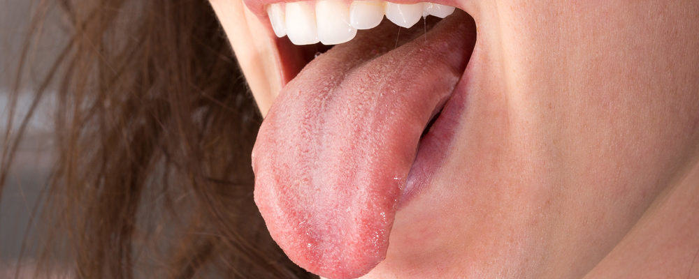 5 Penyebab Mulut Anda Terasa Pahit Saat Puasa