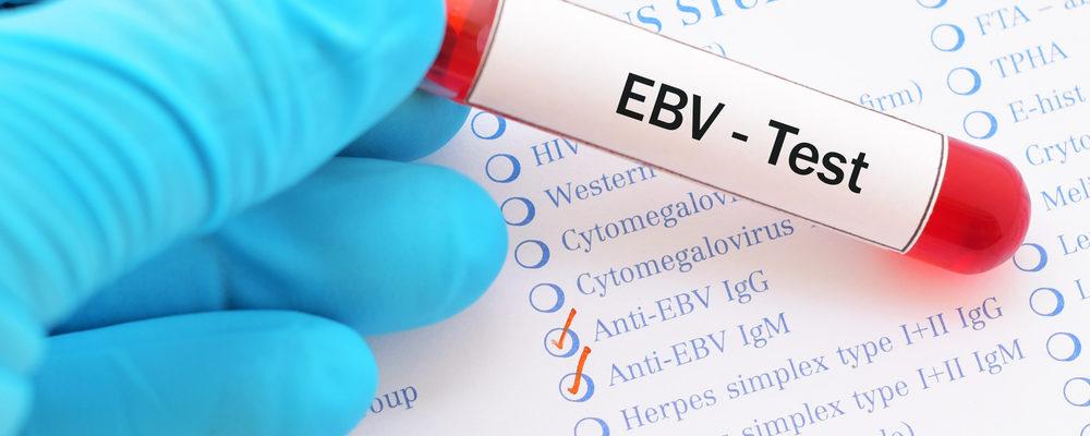 Penelitian Ungkap Virus Epstein-Barr Bisa Sebabkan 7 Penyakit Serius Ini