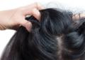 Benarkah Jarang Keramas Bikin Rambut Jadi Ketombean?