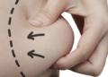 Ingin Coba Sedot Lemak? Baca Dulu Berbagai Risiko Efek Samping yang Mungkin Terjadi