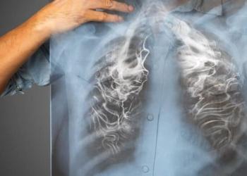 6 Bagian Tubuh yang Paling Cepat Rusak Akibat Merokok