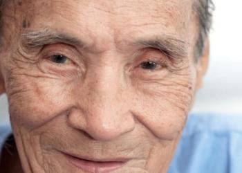 Waspada! Terlalu Lama Dibiarkan, Katarak Senilis Bisa Picu Glaukoma