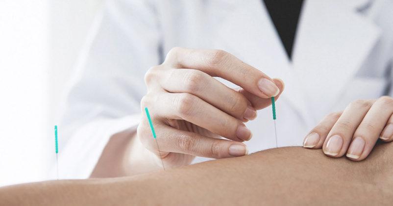 terapi akupunktur untuk meningkatkan kesuburan