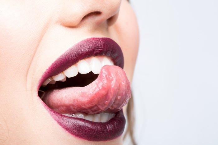 mengatasi lidah panas